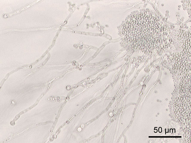 Hefepilz Sorte Candida-albicans