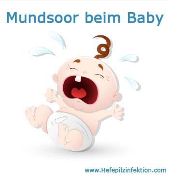 Soor im Mund beim Baby vermeiden