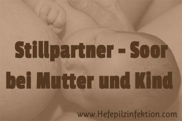 Soor kann sich beim Stillen als Ping-Pong-Effekt von der Mutter aufs Kind übertragen oder umgekehrt